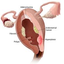 Abortar en Guipúzcoa
