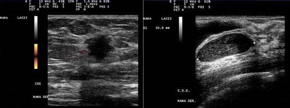 Patologa 2013: PATOLOGA DE LA MAMA
